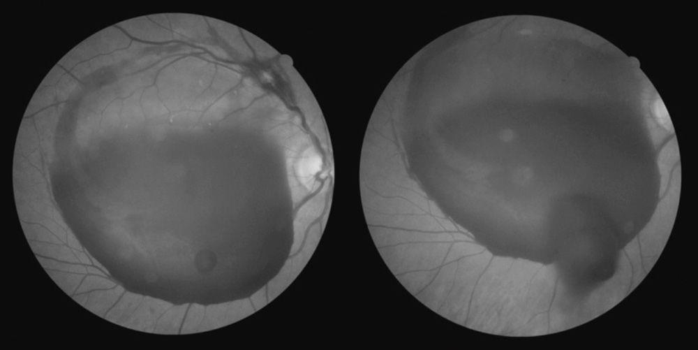 Premacular Subhyaloid Haemorrhage Treated Successfully At AEHI