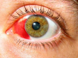 Dengue fever can affect Your Eyes too