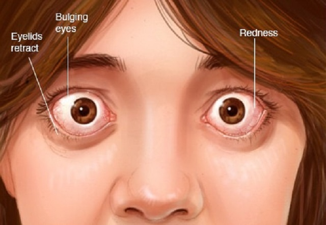 Feel Pressure Behind Your Eyes?