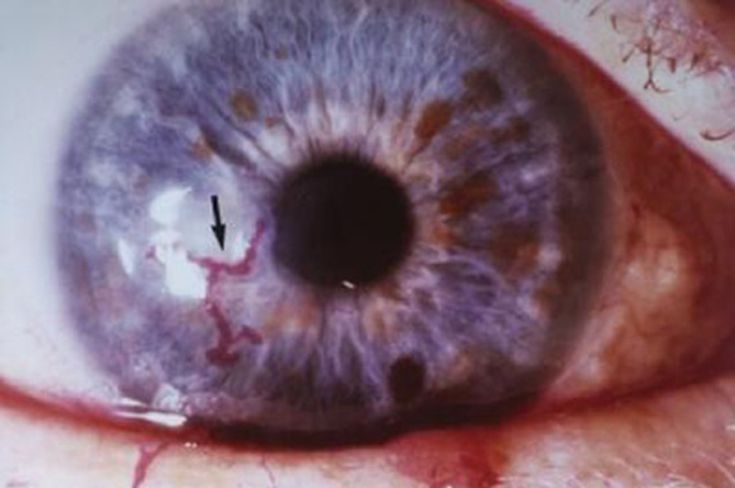 How to Prevent Corneal Ulcer with these Eye Care Tips