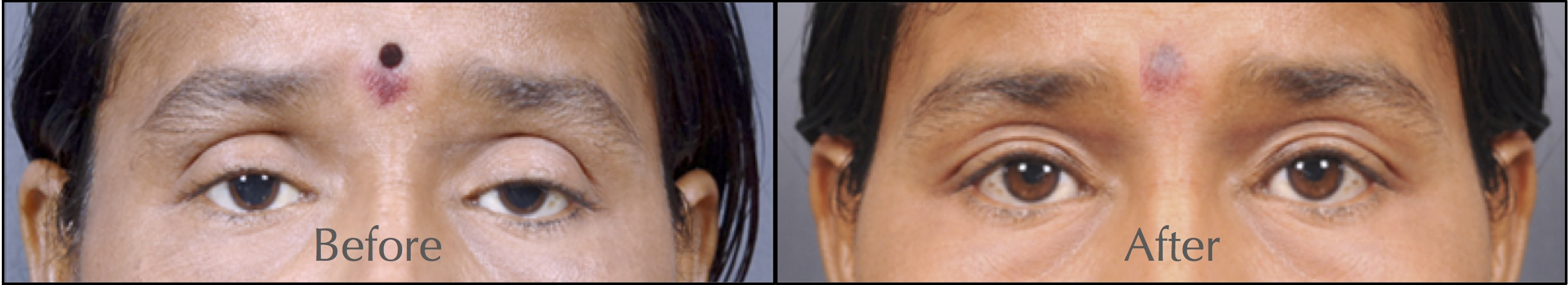 5 Quick Questions on Ptosis