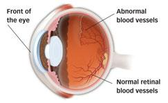 Eye Diseases In Children