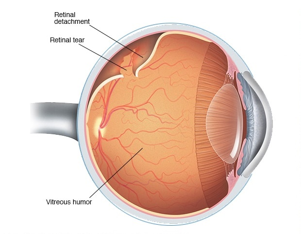 Eye Care Guidelines After Retinal Detachment Surgery