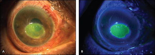 Delayed Treatment Leading To Corneal Ulcer Treated Successfully At AEHI eye hospital Navi Mumbai