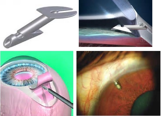 Glaucoma Tube Shunt Procedures