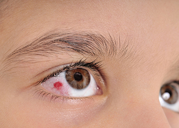 Eye Trauma in a 8 yr old treated successfully at AEHI eye hospital in Navi Mumbai