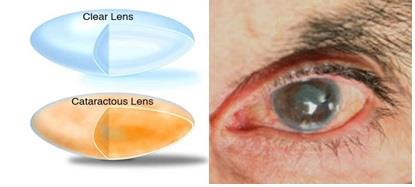 Benefits of combined Glaucoma and Cataract Surgery