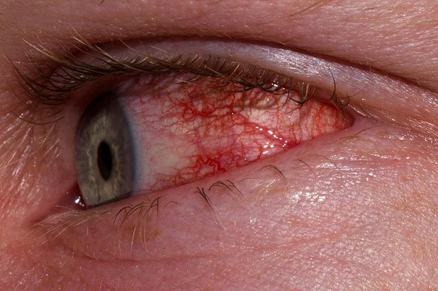 Common Eye Injuries and How to Prevent Them