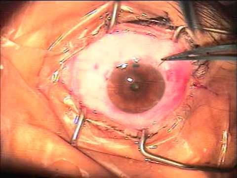 Vision Improved after Trabeculectomy with Ologen Implant done for Glaucoma at AEHI