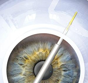 Hello Mini Shunt! Good Bye Glaucoma Drops!!