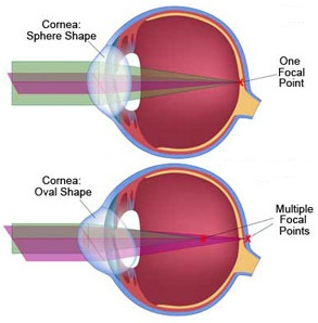 NewVariety ofContactlensesfor best treatment ofAstigmatism