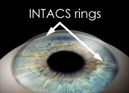 Intacs in Keratoconus