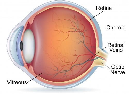 Detachment Of Retina