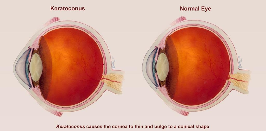 Can Keratoconus Make You Blind