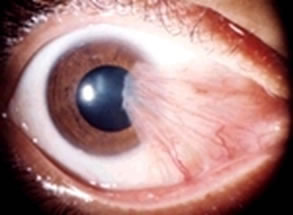Blurred Vision Due To Over Growth of Conjunctiva Treated At AEHI Eye Hospital, Navi Mumbai