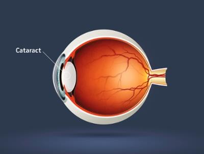 Cataract - Causes, Symptoms and Treatments