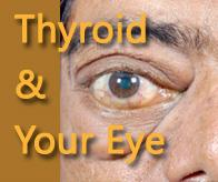 Thyroid and your eye