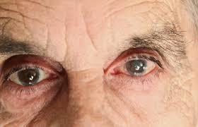 Best treatment for Cataract and Glaucoma in Navi Mumbai, India - a tale of happiness