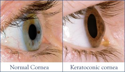 What Is Keratoconus
