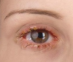 Eyelid swelling treatment at Advanced Eye Hospital, Mumbai, India