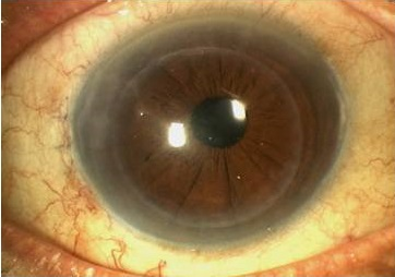 partial thickness cornea transplant