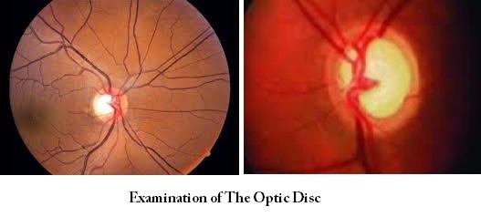 Best Glaucoma Specialists at Advanced Eye Hospital, Mumbai, India