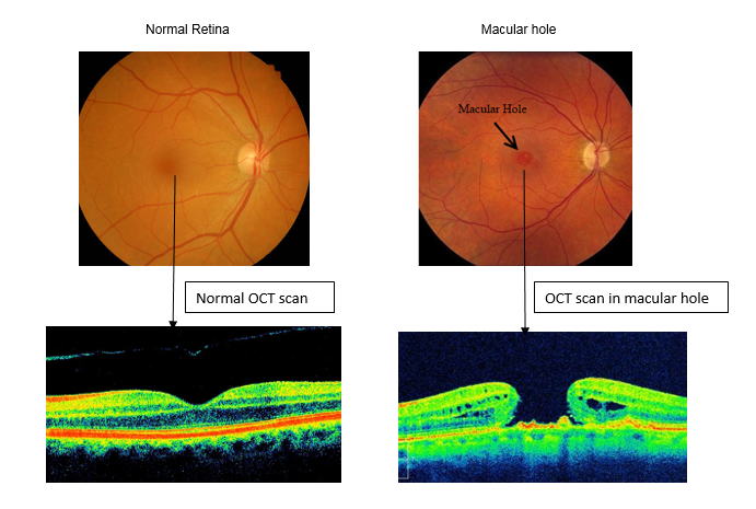 diagrammatic representation of macular hole