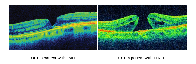oct image of retina with macular hole