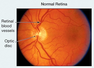 Hypertensive Retinopathy Treatment at Advanced Eye Hospital, Navi Mumbai