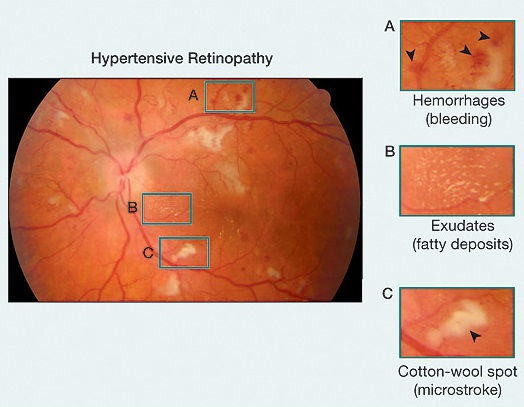 Hypertensive Retinopathy caused due to Hypertension- AEHI, Navi Mumbai