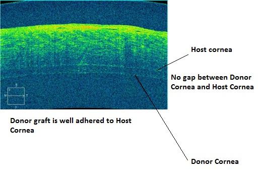 DSEK Corneal Transplantation by Best Cornea Specialists at Advanced Eye Hospital, Mumbai