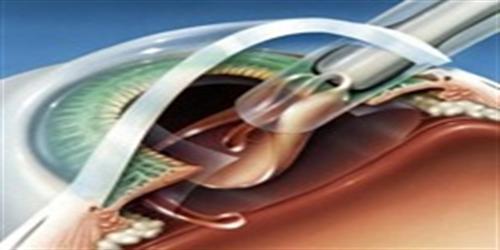 Corneal Transplant: DSAEK Eye Surgery