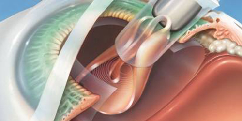 Cataract:Micro Incision Cataract Surgery